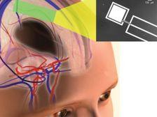 Разработан чип, питающийся от человеческого мозга