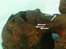 Мумия Пентаура. Стрелками показаны кожные складки, образовавшиеся в результате повешения  ((фото BMJ).)