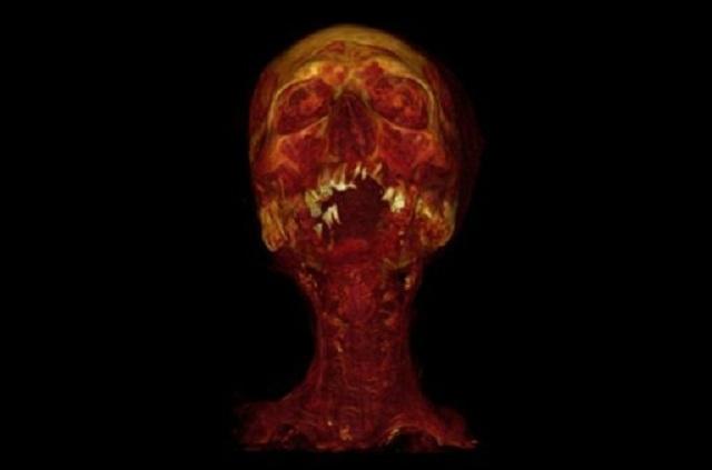 Как показала компьютерная томография, 47 из 137 мумий имели все признаки атеросклероза (фото The Lancet).