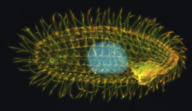 Тело одноклеточной тетрахимены покрыто ворсинками (фото Richard Robinson/PLOS Biology/Wikimedia Commons).