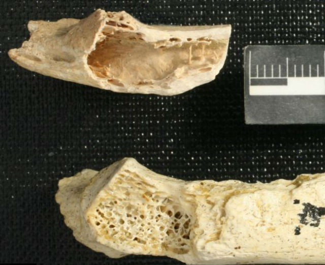 """Снимки показали, что половина внутреннего слоя кости была """"съедена"""" опухолью. Это проявление фибродисплазии"""