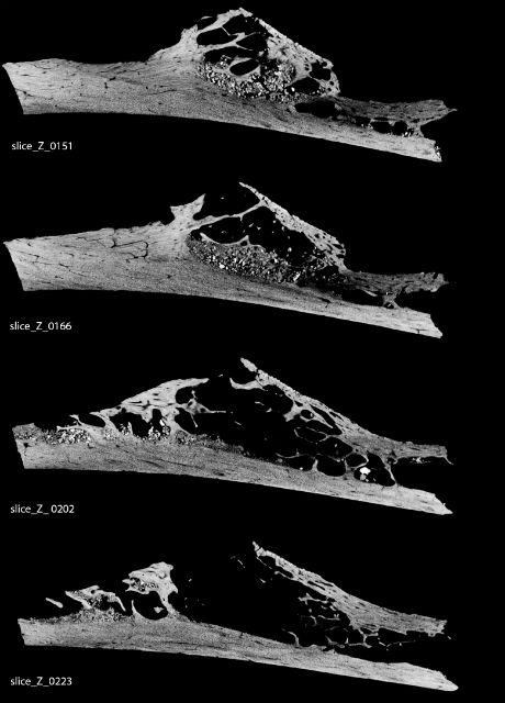 На снимке показал процесс замещения костной ткани опухолью (фото GW Weber/Universitat Wien).