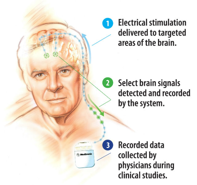 Электрические импульсы посылаются точно в те участки мозга, которые нуждаются в лечении. Система распознаёт, записывает сигналы самого мозга. Собранные данные медики будут анализировать в ходе клинических испытаний (иллюстрация Medtronic).