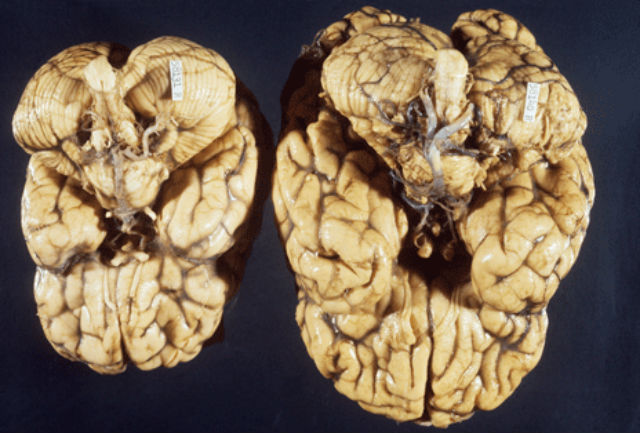 Мозг здорового человека (справа) и мозг микроцефала (слева) (фото M. A. Lancaster/IMBA).