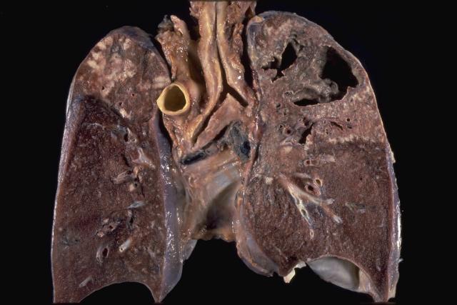 Лёгкое, поражённое туберкулёзом (фото Yale Rosen/Flickr).