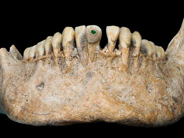 Инкрустация зубов нефритом была признаком высокого социального статуса (фото Nicolaus Seefeld/Universität Bonn).