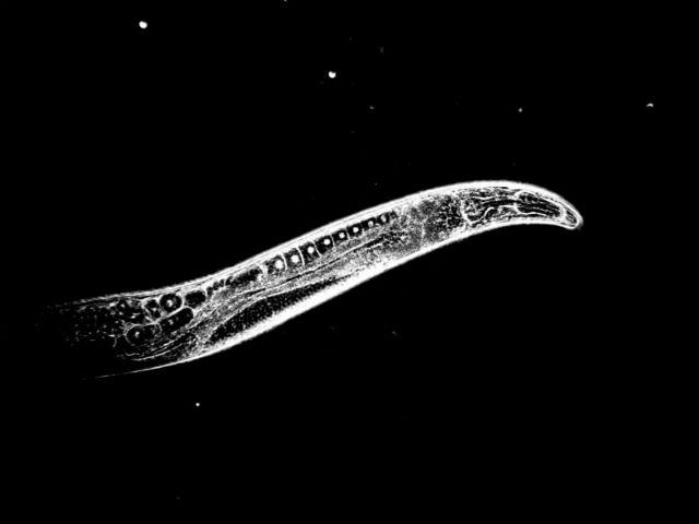 В качестве подопытного модельного организма для проведения эксперимента учёные выбрали круглого червя вида Caenorhabditis elegans. На снимке инвертированное фото, полученное под микроскопом (фото Michael Ristow / ETH Zurich).