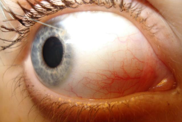 Нарушение работы слёзных желёз может привести к ухудшению зрения или слепоте (фото Lady Weaxzezz/Wikimedia Commons).