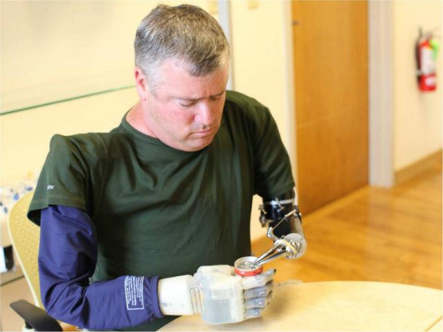 Новая технология вернёт чувство осязания ампутированным конечностям (фото Revolutionizing Prosthetics, DARPA).