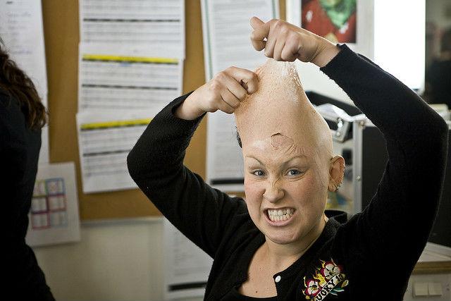 Лысина не всем к лицу. Для тех, кто не желает прощаться с волосами, нью-йоркские дерматологи разработали новый метод борьбы с алопецией (фото Vancouver Film School/Flickr).
