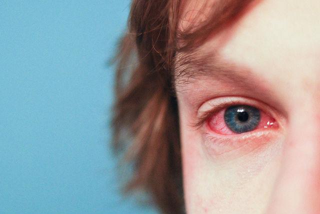 Аллергия помогала нашим предкам выжить среди ядовитых животных (фото Andrew Goloida/Flickr).