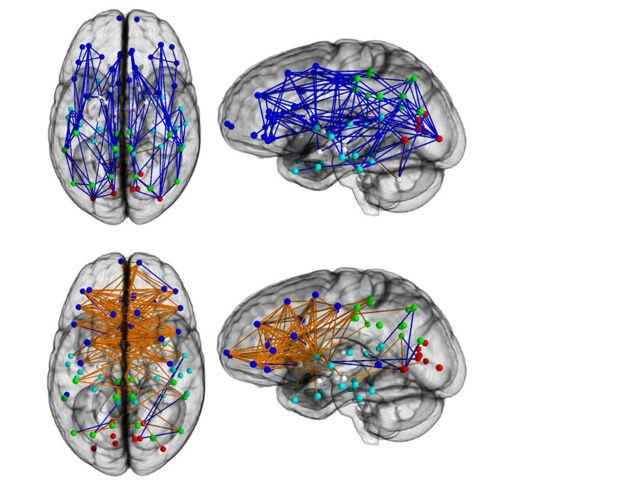 Наиболее крупные межнейрональные связи в мозге мужчины проходят вдоль всего органа, а мозг женщин, напротив, укреплён в поперечнике: крупные межнейрональные связи проходят между левым и правым полушариями (иллюстрация Ragini Verma, Ph.D., Proceedings of National Academy of Sciences).
