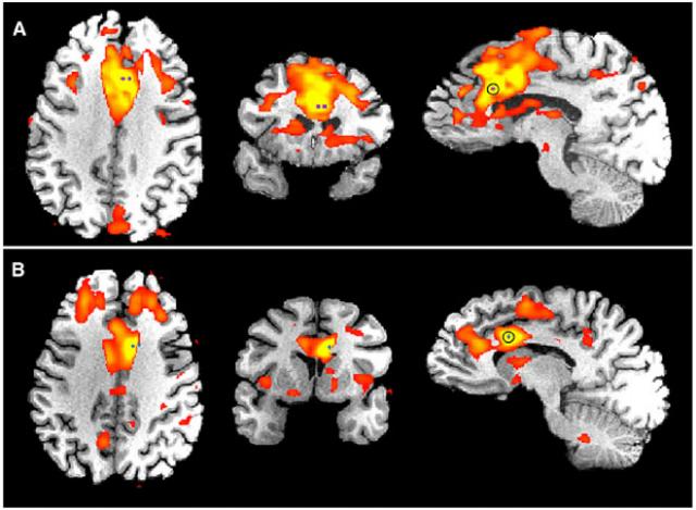 Активность мозга у двух пациентов, страдающих эпилепсией, вызванная важными внутренними и внешними сигналами, такими как боль или звук сирены (иллюстрация Parvizi et al. Neuron 2013).